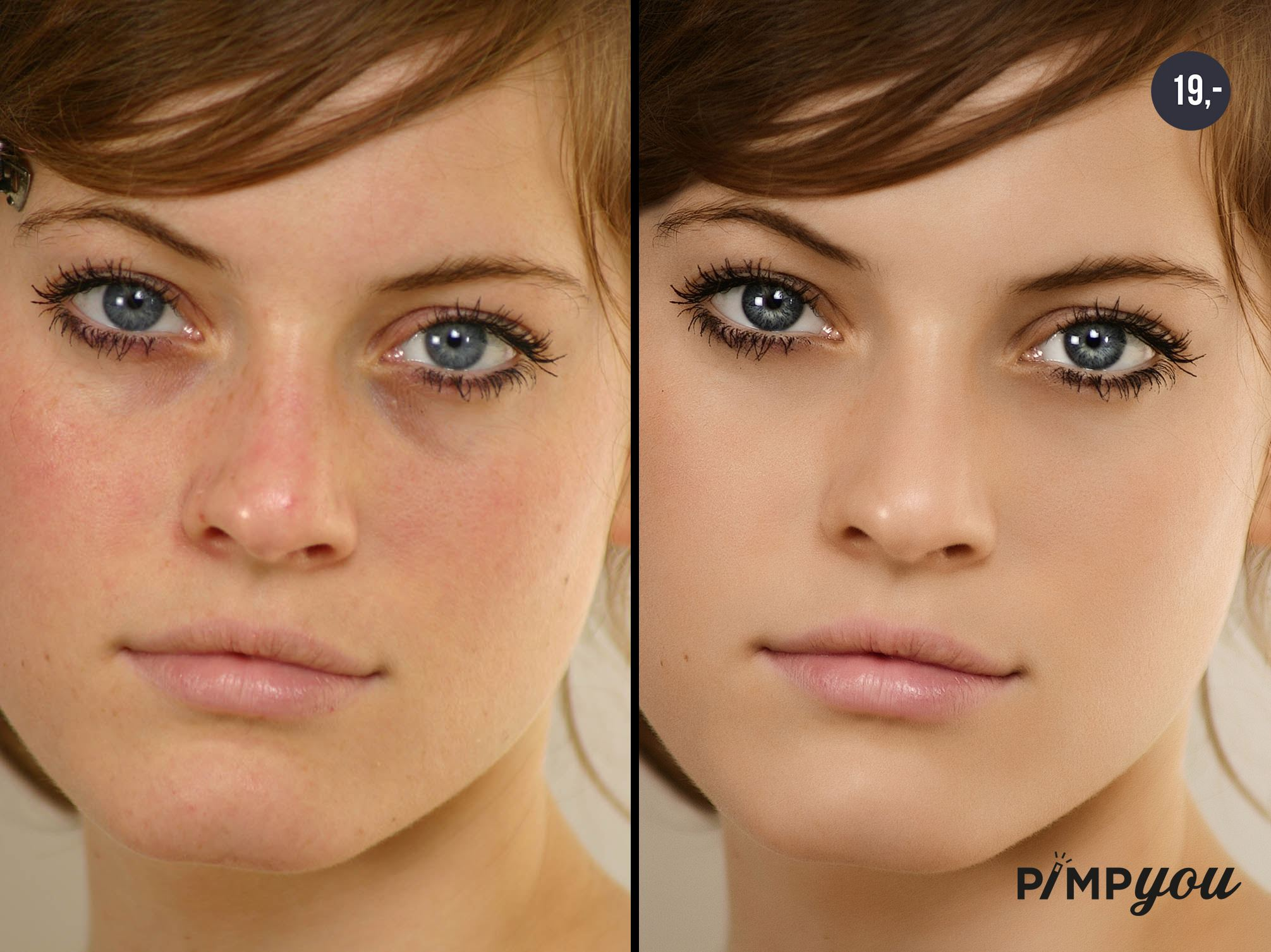 Removing pimples from photographs